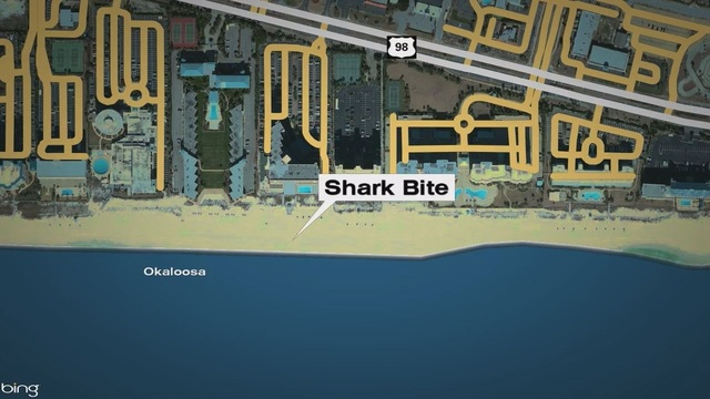 Teen recovering from terrifying shark attack in Gulf of Mexico