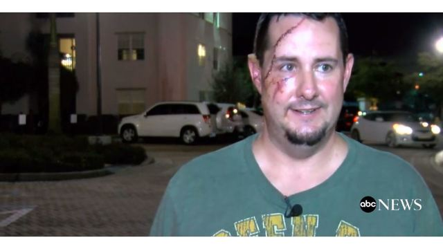 Florida Man Happy to Be Alive After Bear Attack